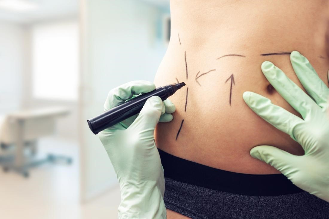 Surgeon using marker pen prior to surgery