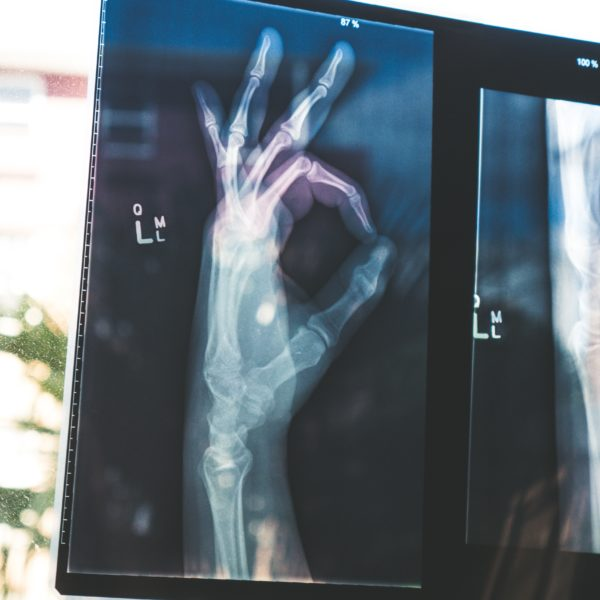 X-ray of a hand doing OK gesture