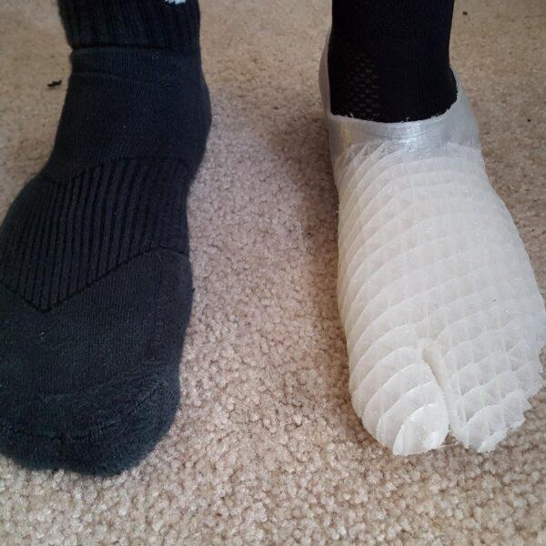 3D printed prosthetic foot