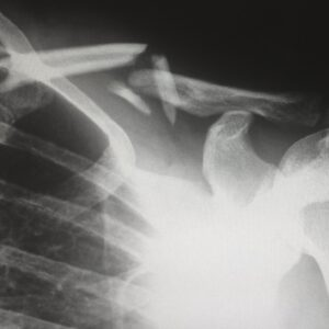 Human X-ray
