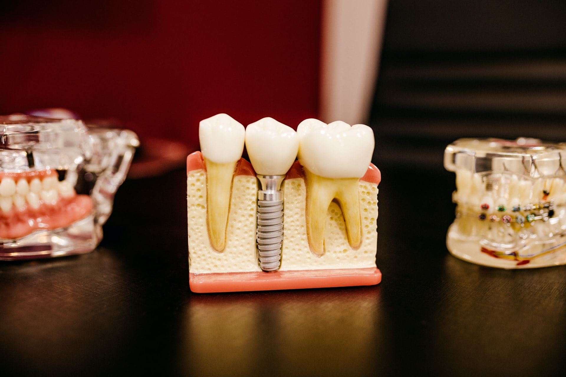 To the right is a dentist's model of teeth, in the middle is a model of how dental implants work, to the right is a model of teeth with braces