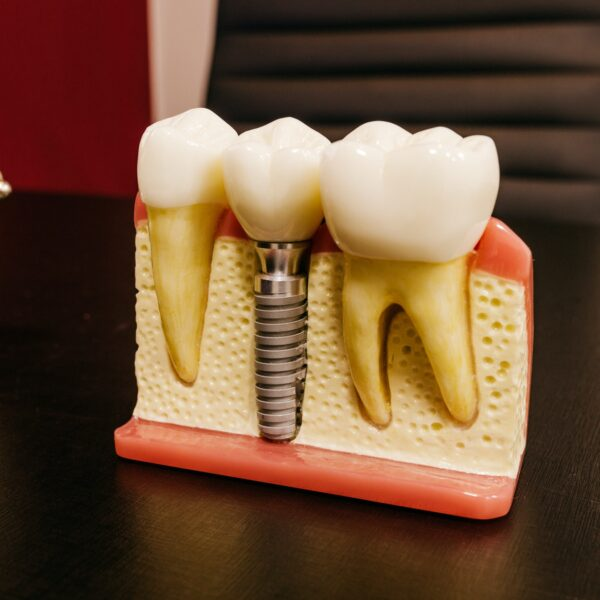 Model of a dental implant on a table in a clinic